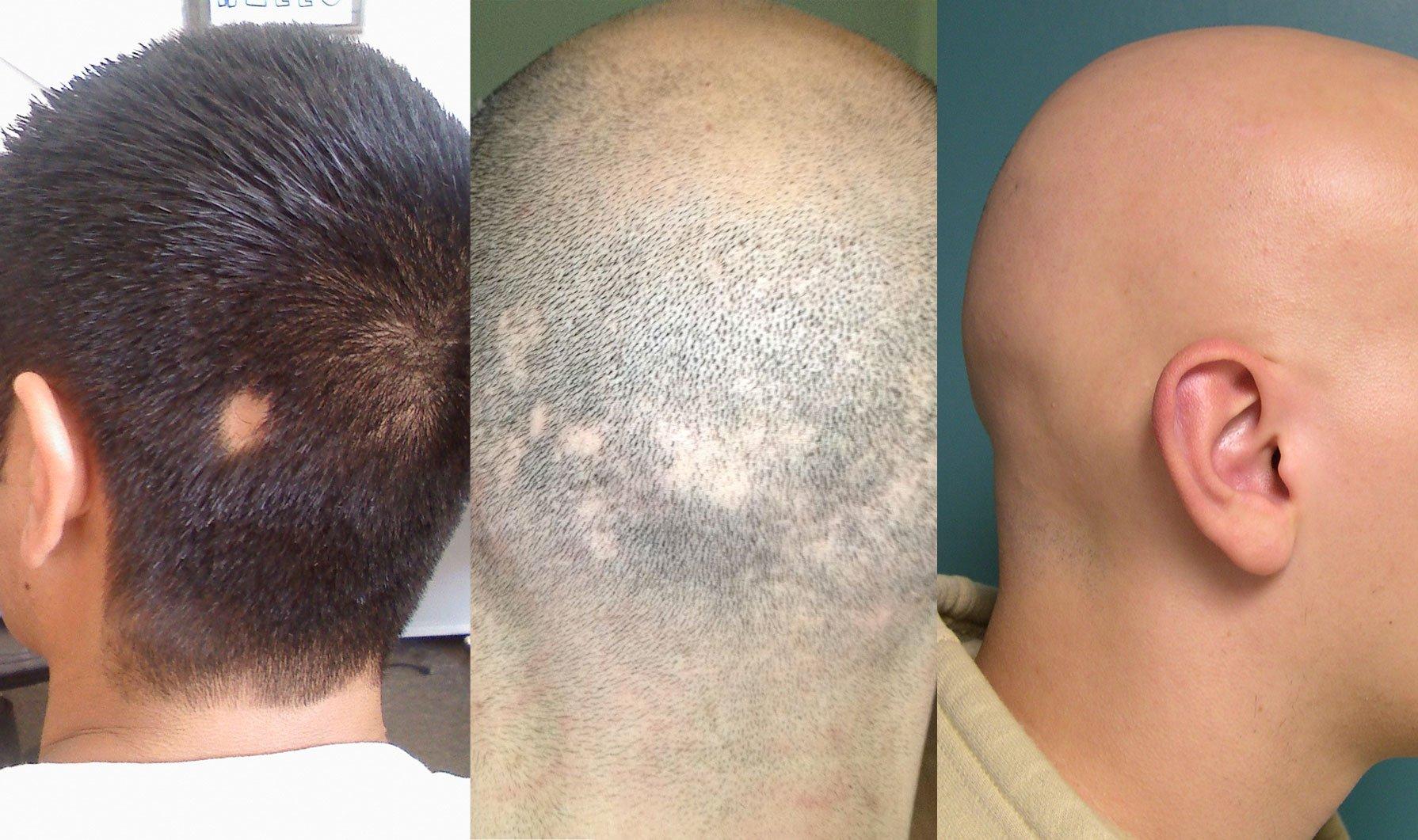 Alopecia Areata e Alopecia Totale 135e037f8849