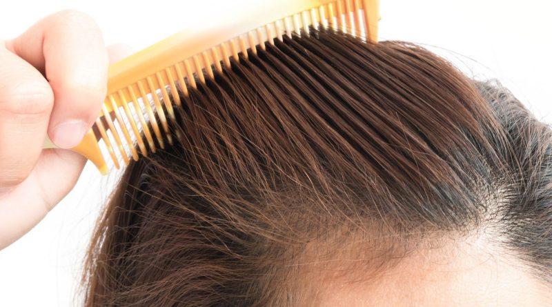 Perdita di capelli nelle donne, elenco delle principali cause