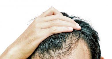 Calvizie e psiche, come affrontare la perdita dei capelli.